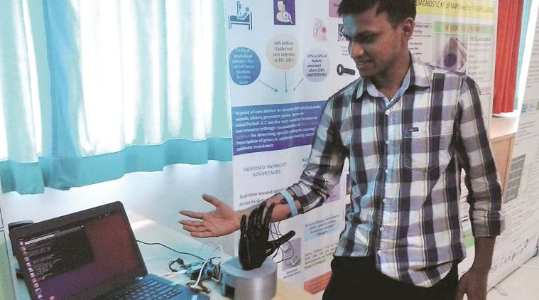Pratik Bhalerao, a co-founder at Pune start-up Dee Dee Labs, demonstrates the working of the prosthetic hand. Photo credit: Indian Express.